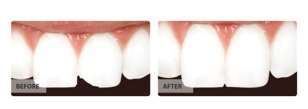 tooth chips removed